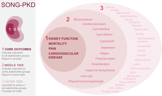 Establishing A Core Outcome Set For Autosomal Dominant Polycystic Kidney Disease Report Of The Standardized Outcomes In Nephrology Polycystic Kidney Disease Song Pkd Consensus Workshop Sciencedirect