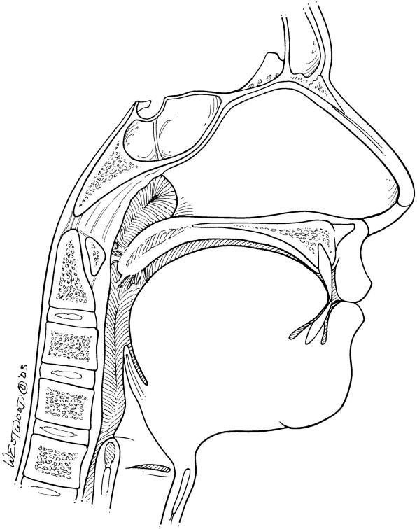 Complications Of Laser Assisted Uvulopalatopharyngoplasty La Uppp
