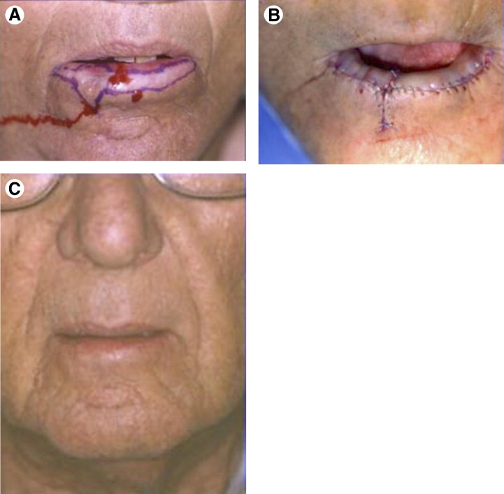 Actinic Keratosis: From the Skin to the Lip - ScienceDirect