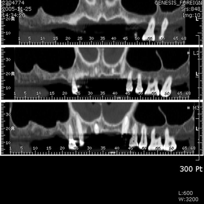 Analysis of the Anatomy of the Maxillary Sinus Septum Using 3 ...