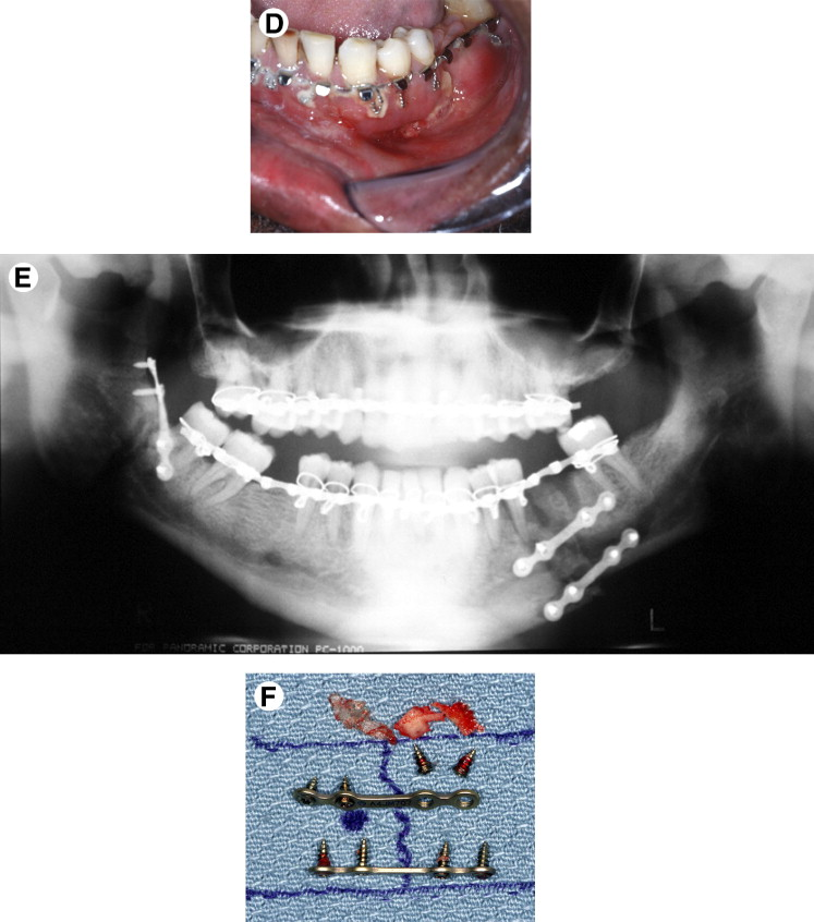 A Study of 2 Bone Plating Methods for Fractures of the Mandibular ...