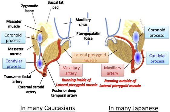 Risk Of Maxillary Artery Injury During An Intraoral Vertical Ramus