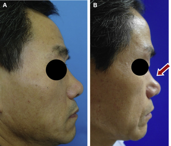 Height Changes of Tutoplast-Processed Fascia Lata Over Time After
