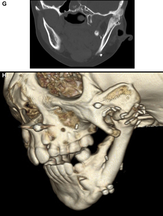 Temporomandibular Joint Ankylosis After Ramus Construction With Free