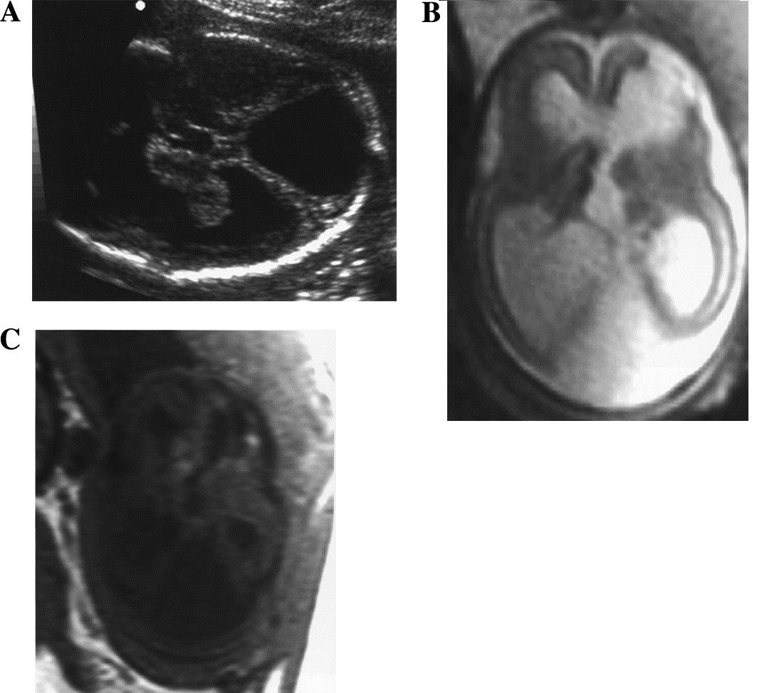 MR imaging of fetal central nervous system abnormalities - ScienceDirect