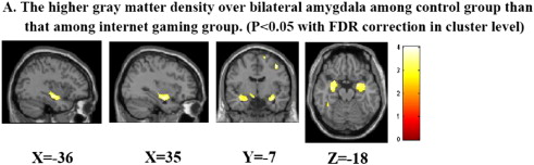 Gray Matter Density Increases During >> Altered Gray Matter Density And Disrupted Functional Connectivity Of