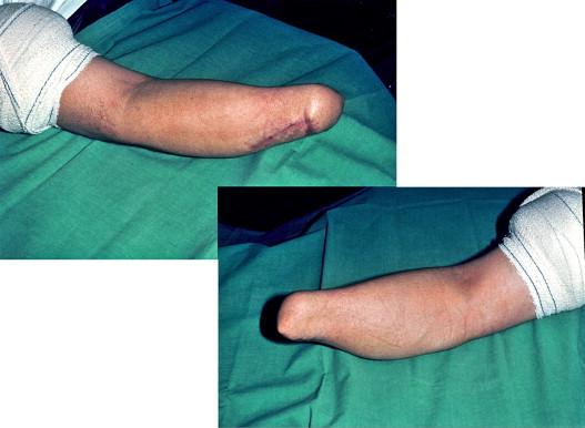 du poignet Entra/înement de la main de la prise en main flexible et extensible pour plus de force et dendurance. de lavant-bras et des doigts Presse