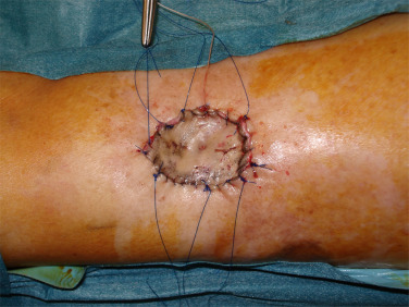Full Thickness Skin Grafts For Lower Leg Defects Coverage Interest Of Postoperative Immobilization Sciencedirect