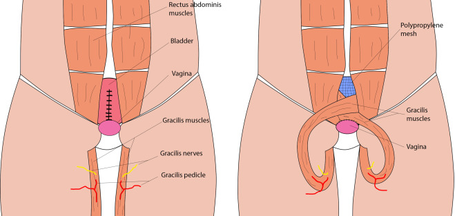 Secondary bladder exstrophy repair with a bilateral gracilis muscle ...