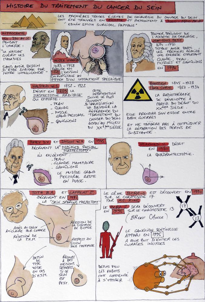 Historique du traitement du cancer du sein - ScienceDirect