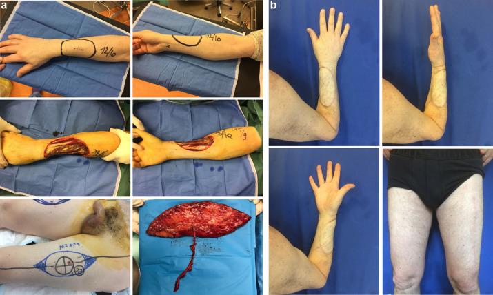cancer sarcoma jambe