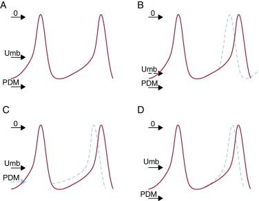Mecanismos de las arritmias cardiacas - ScienceDirect
