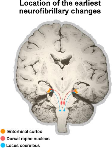 Monoaminergic neuropathology in Alzheimer's disease