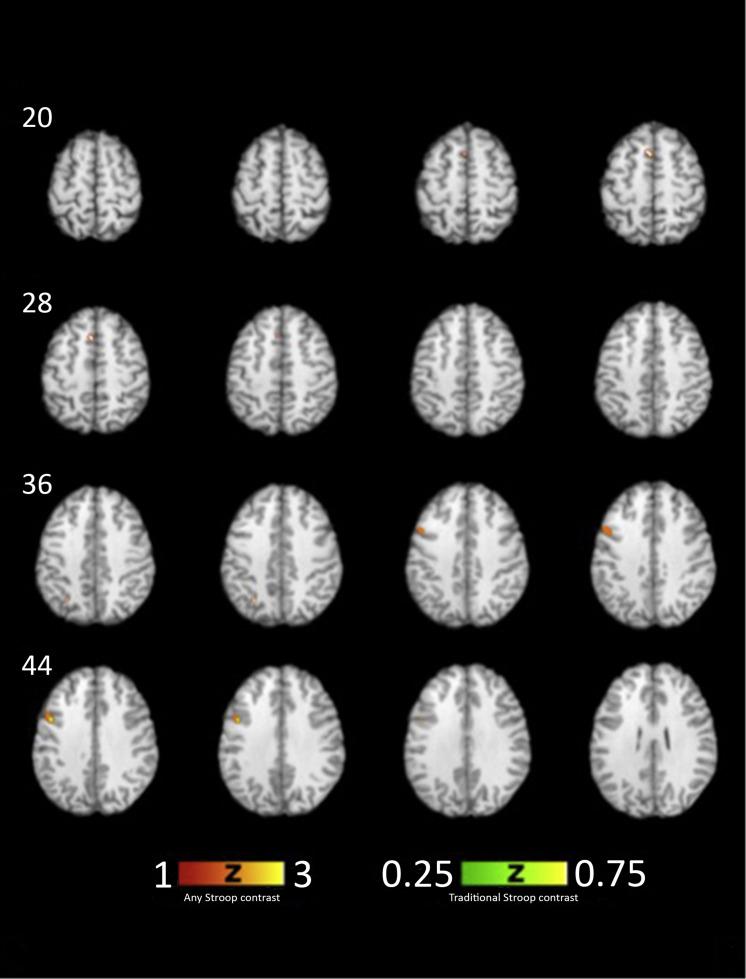 Behavior, neuropsychology and fMRI - ScienceDirect