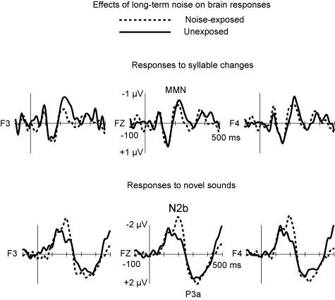 Detrimental noise effects on brain's speech functions
