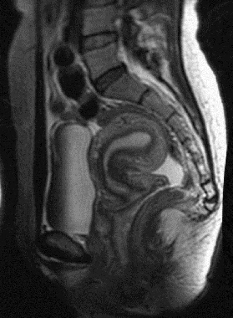 An evaluation of pelvic floor anatomy and function by MRI ...