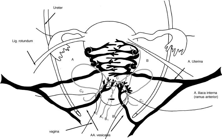 Placenta Percreta Treated Using A New Surgical Technique