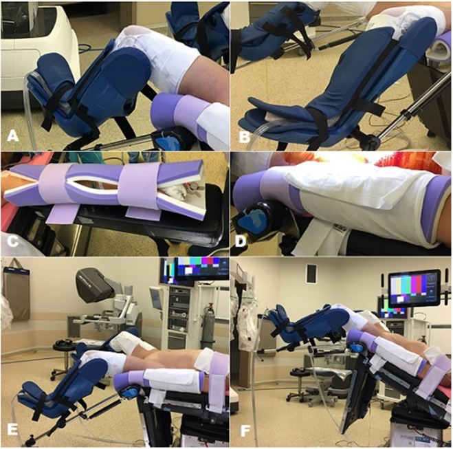 Patient Positioning For Robot Assisted Laparoscopic Benign
