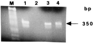 human papillomavirus b19 cum se vindecă fergusele adulte