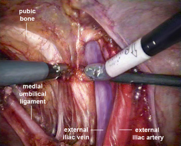 Robotic-Assisted Laparoscopic Extended Pelvic Lymph Node Dissection