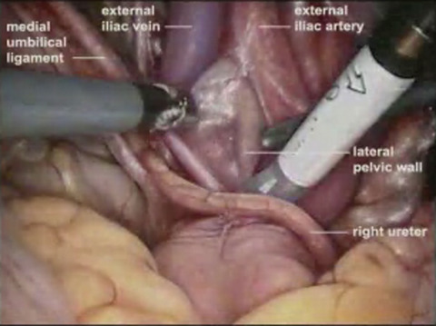 Robotic-Assisted Laparoscopic Extended Pelvic Lymph Node