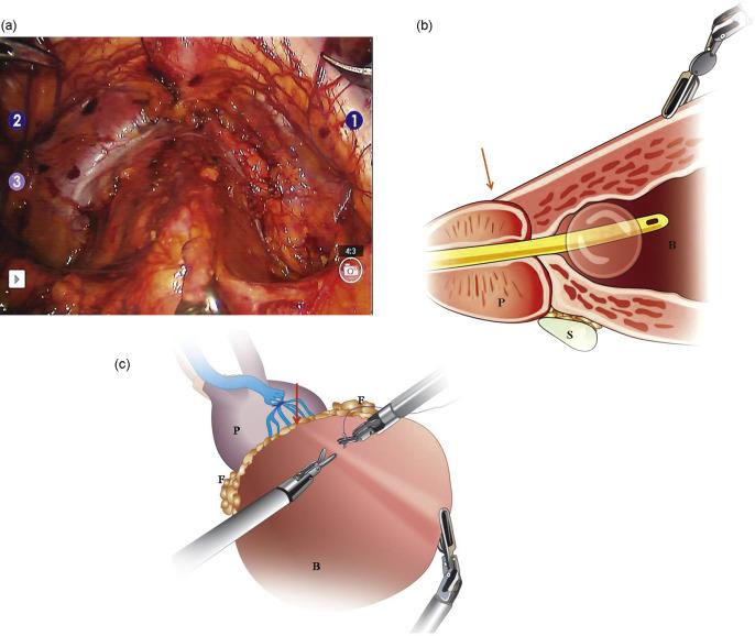 Anatomic Bladder Neck Preservation During Robotic Assisted