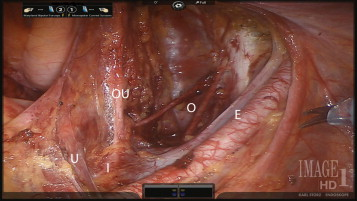 The Role Of Robot Assisted Radical Prostatectomy And Pelvic Lymph