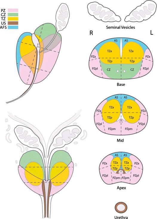 mapa de strt próstata mrta