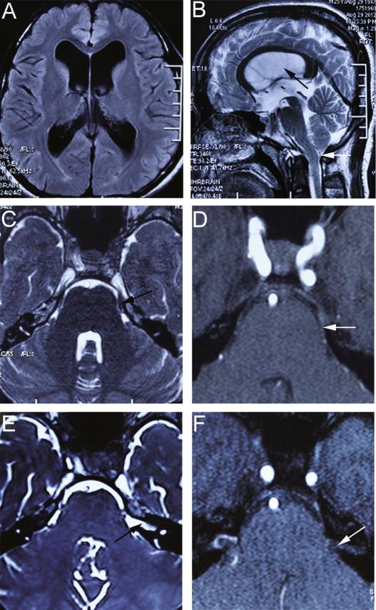 Hemifacial spasm and trigeminal neuralgia in Chiari's I