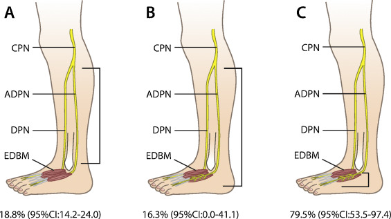 Prevalence of the accessory deep peroneal nerve: A cadaveric study ...