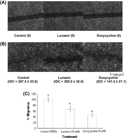 Lunasin Potentiates The Effect Of Oxaliplatin Preventing Outgrowth Of Colon Cancer Metastasis Binds To A5b1 Integrin And Suppresses Fak Erk Nf Kb Signaling Sciencedirect