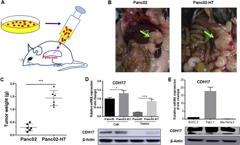 Disruption of oncogenic liver-intestine cadherin (CDH17