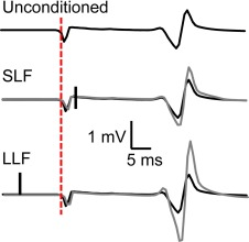 Establishing between-session reliability of TMS-conditioned