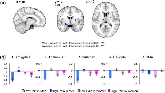 Sex similarities and differences in pain-related periaqueductal gray
