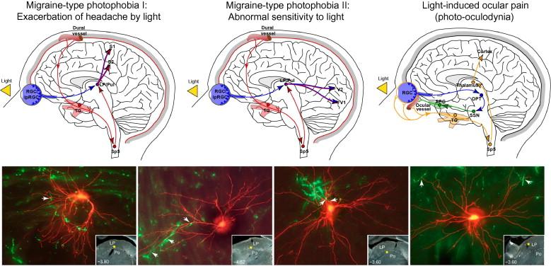 Migraine pathophysiology: Anatomy of the trigeminovascular