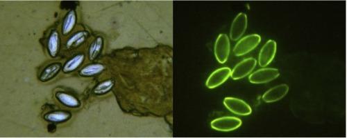Diagnóstico de doenças IP Enterobius vermicularis ufrgs, Enterobius vermicularis ufrgs