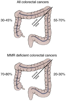 Colorectal Cancers Choosing Sides Sciencedirect