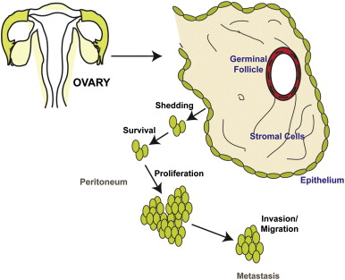 ovarian cancer is epithelial)