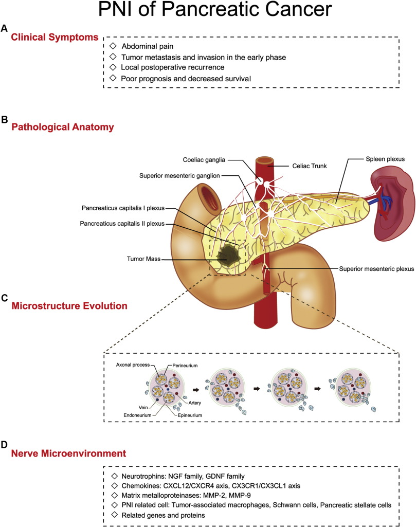 New insights into perineural invasion of pancreatic cancer: More ...