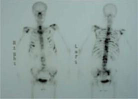 docetaxel cáncer de próstata de primera línea 648 español