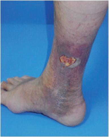 angiomatosis bacilar síntomas de diabetes