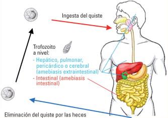 tricomoniasis intestinal sintomas
