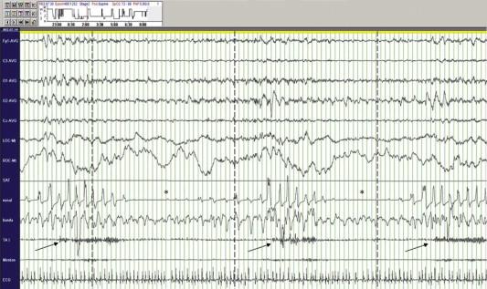 Síndrome de fase avanzada del sueño cronoterapia en hipertensión