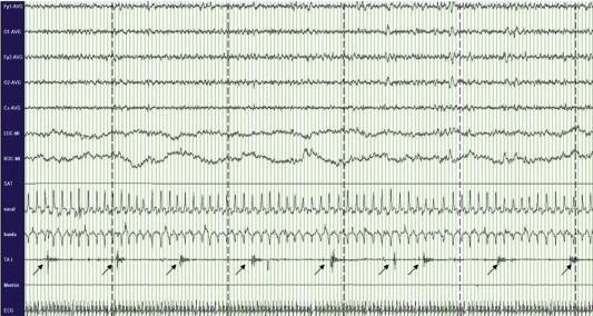 síndrome de fase avanzada del sueño cronoterapia diabetes