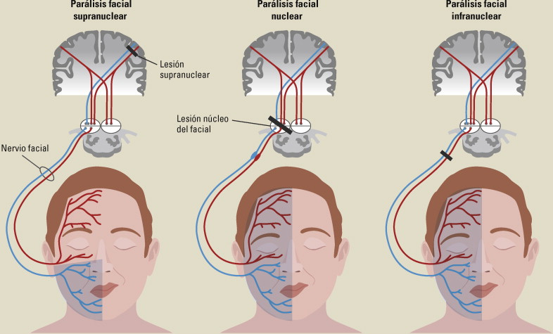 Protocolo diagnóstico de la afectación del nervio facial - ScienceDirect