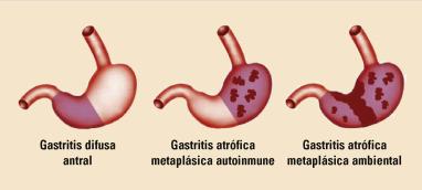 gastritis crónica moderada sintomas de diabetes