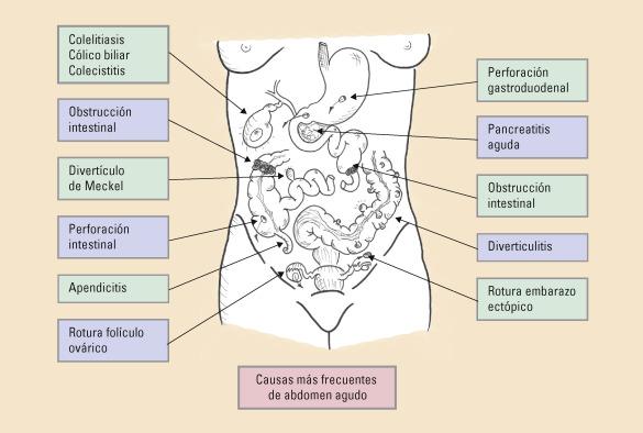 descarga abdominal frecuente dolor abdominal