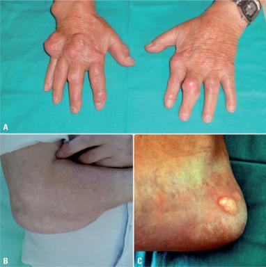 artropatia microcristalina