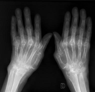 tendinitis aditiva de la cadera