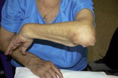 artritis reumatoidea nodulos pdf